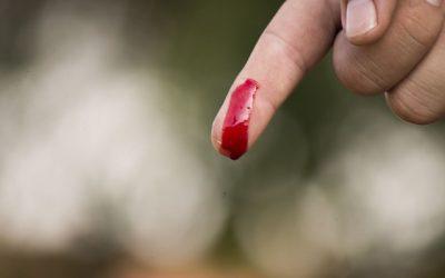 10. Кръвотечение